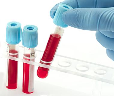 Infos zur Blutabnahme...